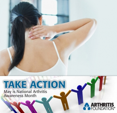 Arthritis: The leading cause of disability in the US
