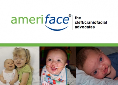 AmeriFace: Changing the face of cleft-related nonprofits