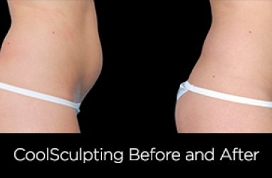 CoolSculpting: A Cool Way To Get In Shape