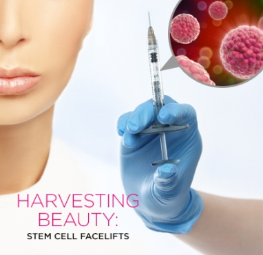 Harvesting Beauty: Stem Cell Facelifts