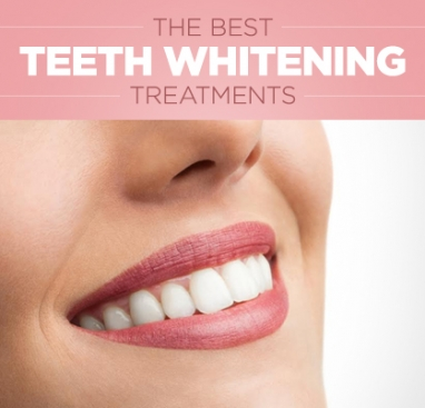 Tips to Achieve Whiter Teeth